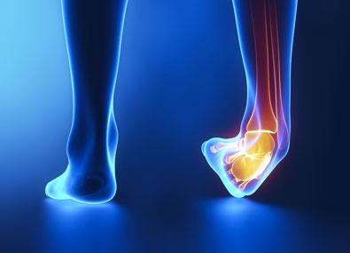 Les 10 blessures les plus fréquentes dans la pratique des ...